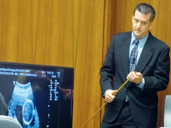 """Dr. Andrew Kayes, radiologist and medical director at Maui Diagnostic Imaging, testifies Friday about a sonogram showing the head of Carly """"Charli"""" Scott's fetus during the 2nd Circuit Court murder trial of her ex-boyfriend Steven Capobianco.  The Maui News / LILA FUJIMOTO photo"""