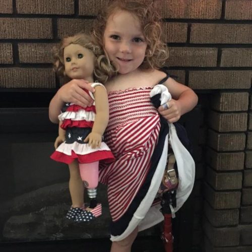 Sarah Czapp of Wheeling shows off her prosthetic leg while posing with her newly amputated American Girl doll, Torey. Torey received a prosthetic leg from  A Step Ahead Prosthetics in New York, so now Sarah has a doll that is truly just like her.  Photos Provided