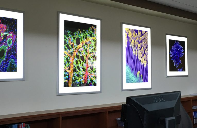 Photo Provided Backlit images of microscopic cells taken by National  Institutes of Health researchers hang at the West Virginia University Health Sciences Center in Morgantown.